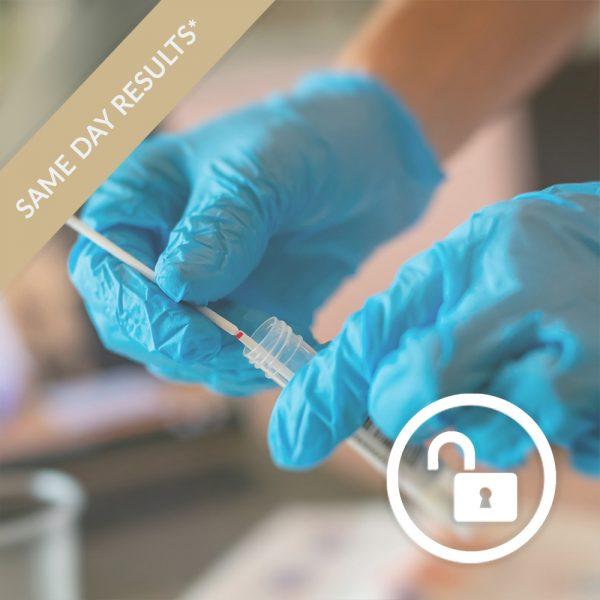 test to release coronavirus test